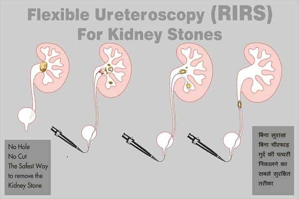 Flexible Ureteroscopy Treatment-min-min