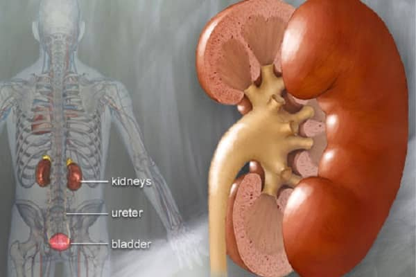 treatment for your Kidney Stones