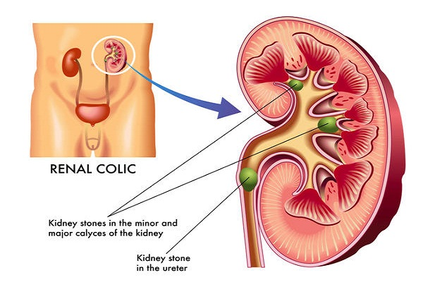 Kidney Stone Removal Cost in Delhi