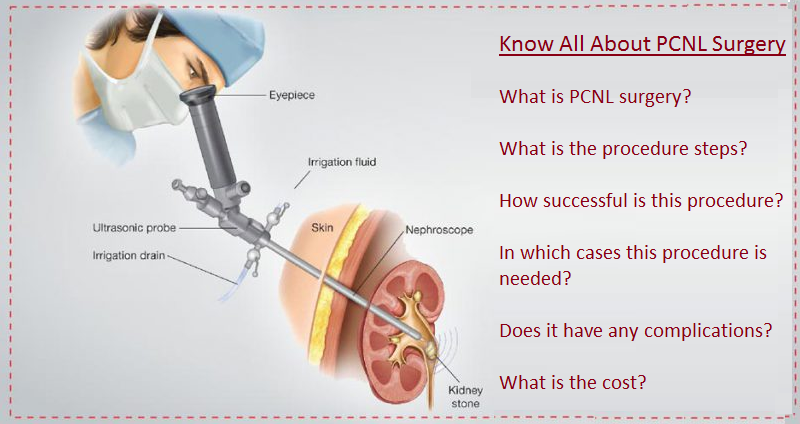 PCNL Treatment in Delhi