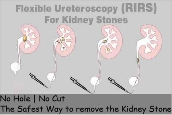 RIRS Treatment in Delhi
