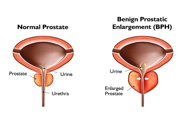 Prostate Laser Treatments In Delhi