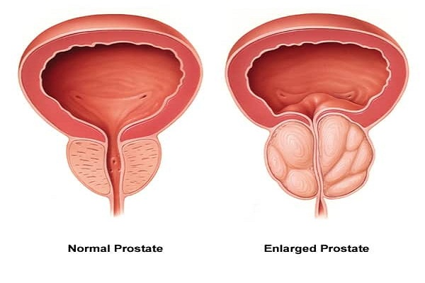 Prostate Enlargement Treatment