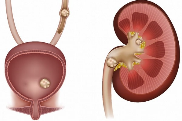 3 to 5 mm Kidney Stones Treatment