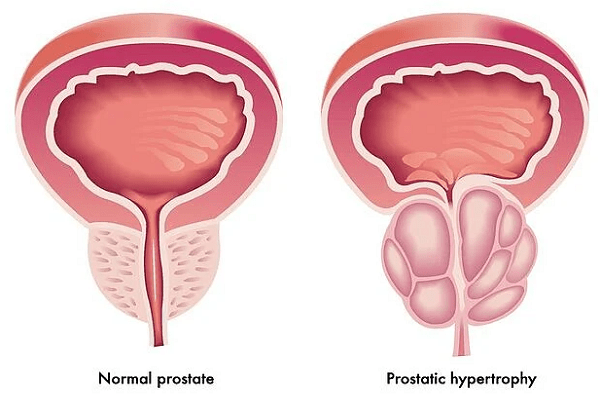 Prostate enlargement treatment in New Delhi